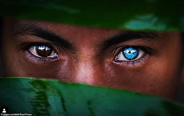 Mắt xanh